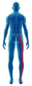 Sciatica pain in leg